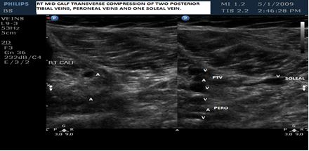 Right Posterior Tibial, Peroneal and Soleal Veins in transverse with compression.